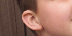 La otoplastia se puede practicar en niños