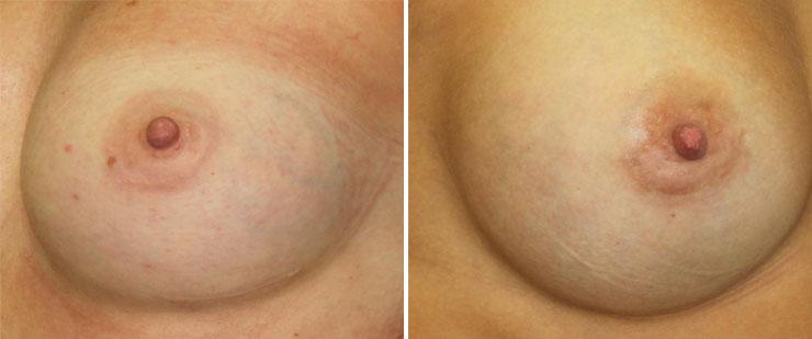 Skayrim las modas el aumento del pecho para unp
