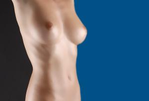 Tras una reducción de pechos, hay que tener especial esmero en el cuidado de las cicatrices para que sean lo menos visibles.