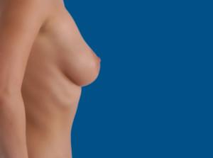 Unos senos demasiado grandes pueden acarrear problemas físicos.