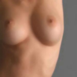 La cirugía para reducción de pechos tiene un altísimo nivel de satisfacción entre las mujeres que se han sometido a ella.