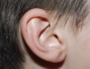 La otoplastia es una operación muy aplicada en niños