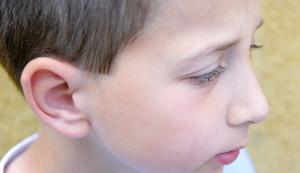 Los niños son los principales pacientes de la intervención de otoplastia