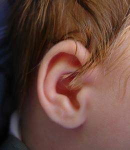 La otoplastia se realiza normalmente en niños a partir de cinco años