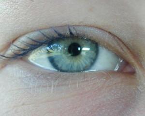 Si la cirugía láser no es posible, se puede acudir a las lentes intraoculares
