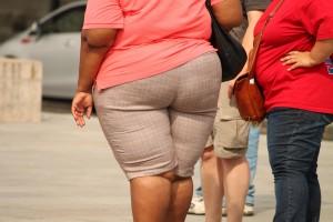 obesidad y abdominplastia Bonomédico